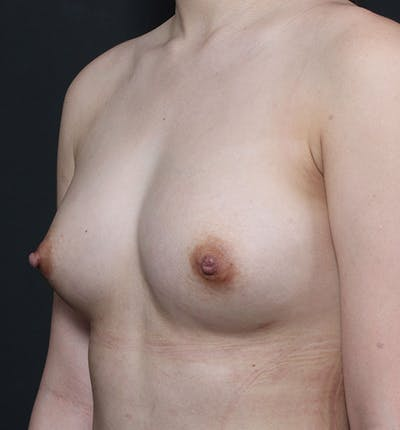 Breast Aug Fat Grafting Gallery - Patient 14089609 - Image 2