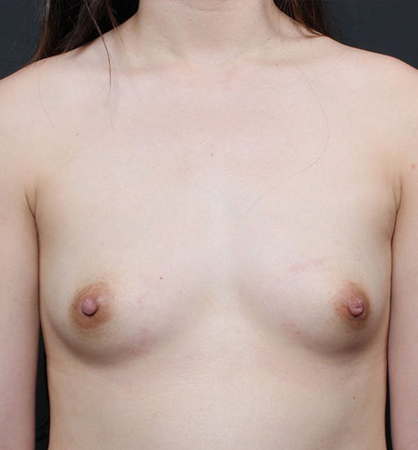 Breast Aug Fat Grafting Gallery - Patient 14089609 - Image 3