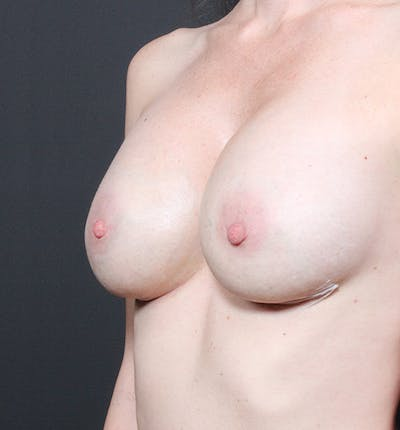Breast Augmentation Gallery - Patient 14089607 - Image 2