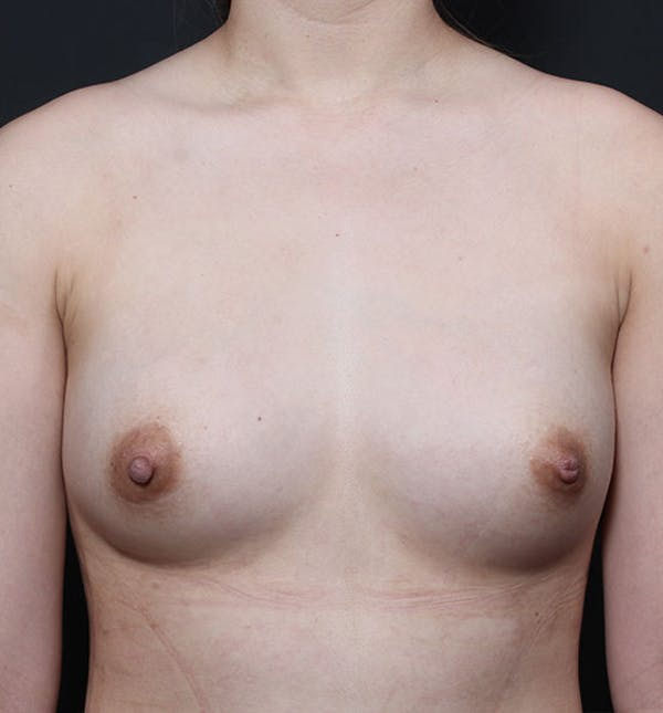 Breast Aug Fat Grafting Gallery - Patient 14089609 - Image 4