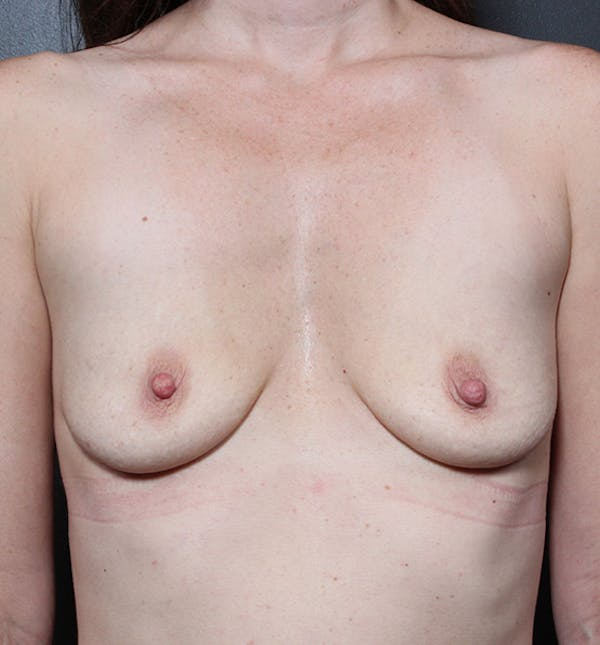 Breast Augmentation Gallery - Patient 14089607 - Image 3