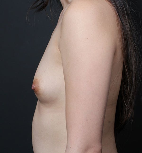 Breast Aug Fat Grafting Gallery - Patient 14089609 - Image 5
