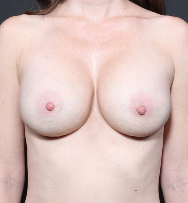 Breast Augmentation Gallery - Patient 14089607 - Image 4