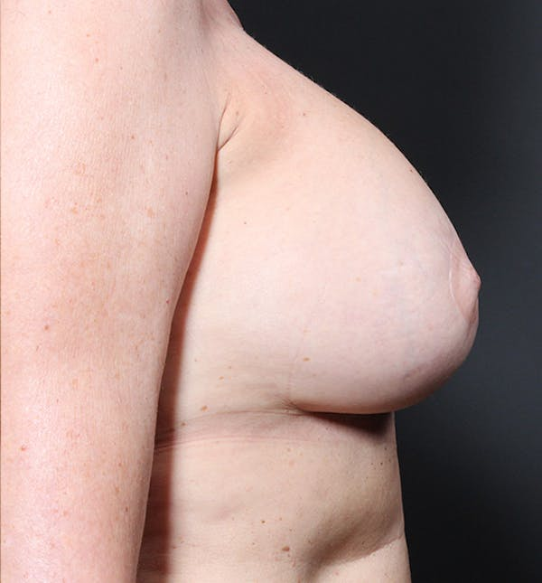 Breast Implant Revision Gallery - Patient 14089603 - Image 10