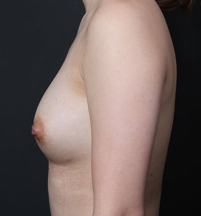 Breast Aug Fat Grafting Gallery - Patient 14089609 - Image 6