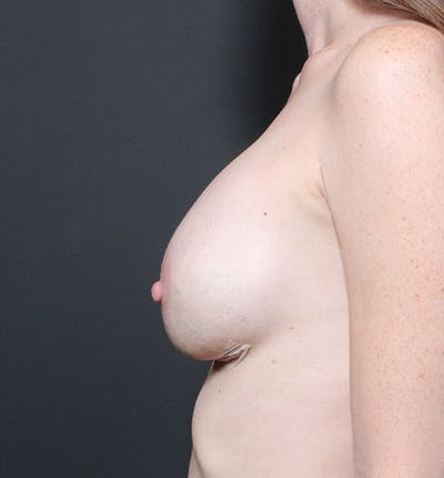 Breast Augmentation Gallery - Patient 14089607 - Image 6