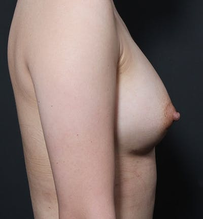 Breast Aug Fat Grafting Gallery - Patient 14089609 - Image 8
