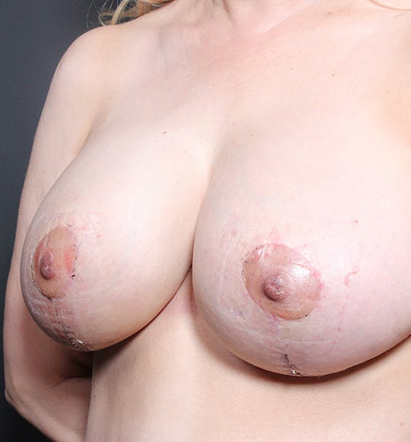 Breast Implant Revision Gallery - Patient 14089612 - Image 2