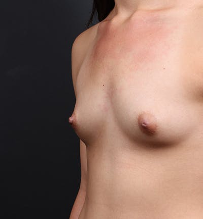 Breast Augmentation Gallery - Patient 14089614 - Image 1