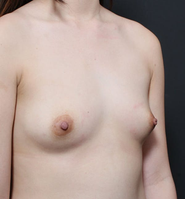 Breast Aug Fat Grafting Gallery - Patient 14089609 - Image 9
