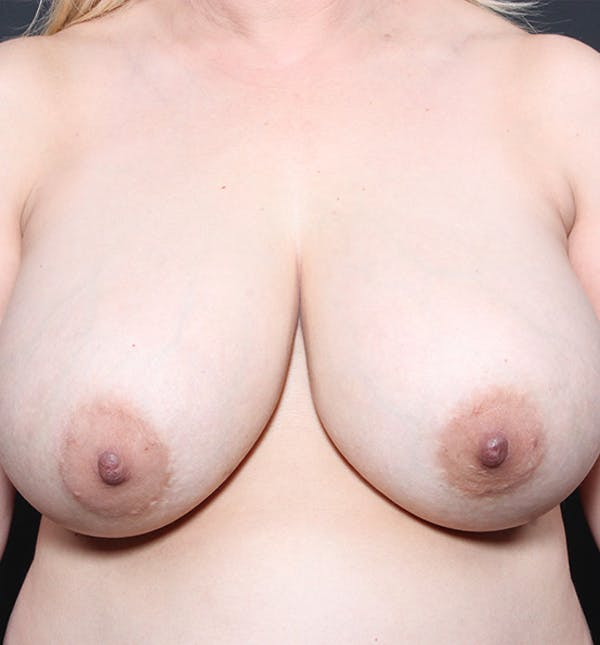 Breast Implant Revision Gallery - Patient 14089612 - Image 3