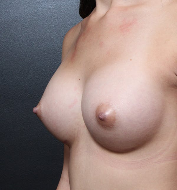 Breast Augmentation Gallery - Patient 14089614 - Image 2
