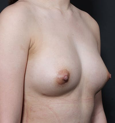 Breast Aug Fat Grafting Gallery - Patient 14089609 - Image 10