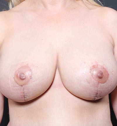 Breast Implant Revision Gallery - Patient 14089612 - Image 4