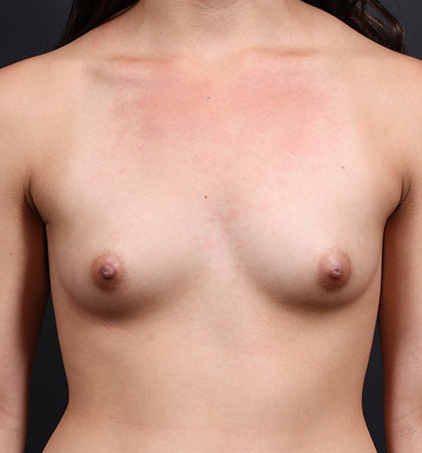 Breast Augmentation Gallery - Patient 14089614 - Image 3