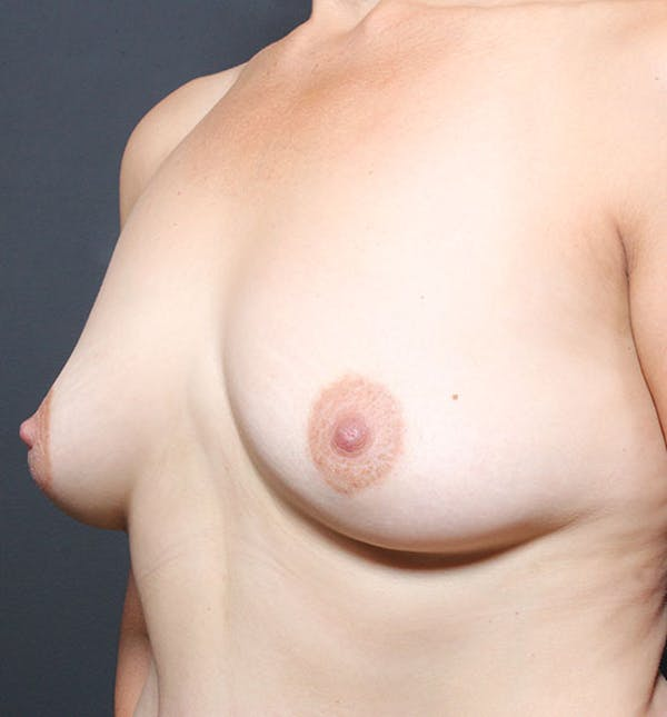 Breast Aug Fat Grafting Gallery - Patient 14089616 - Image 1