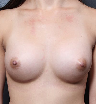 Breast Augmentation Gallery - Patient 14089614 - Image 4