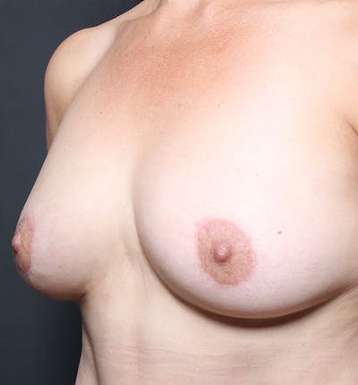 Breast Aug Fat Grafting Gallery - Patient 14089616 - Image 2