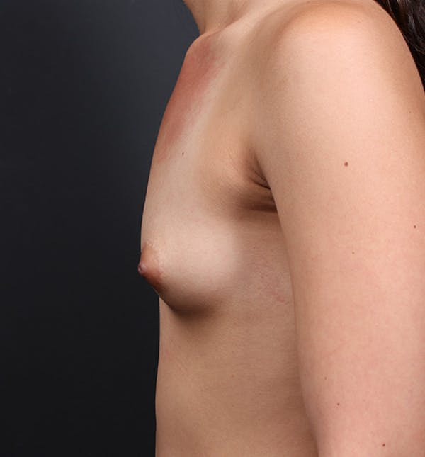 Breast Augmentation Gallery - Patient 14089614 - Image 5