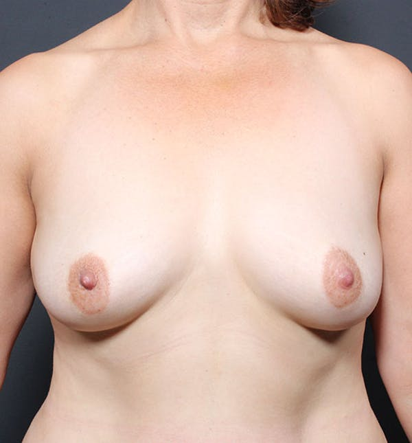Breast Aug Fat Grafting Gallery - Patient 14089616 - Image 3