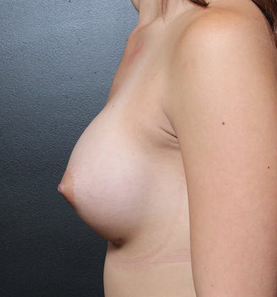 Breast Augmentation Gallery - Patient 14089614 - Image 6