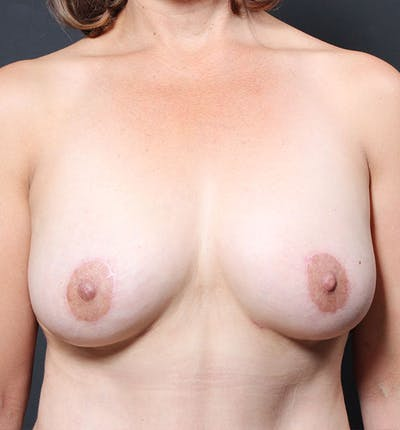 Breast Aug Fat Grafting Gallery - Patient 14089616 - Image 4