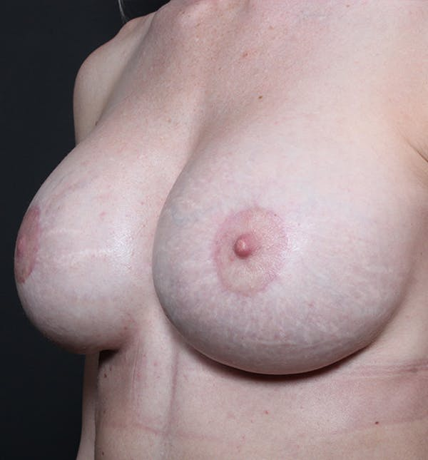 Breast Implant Revision Gallery - Patient 14089619 - Image 2