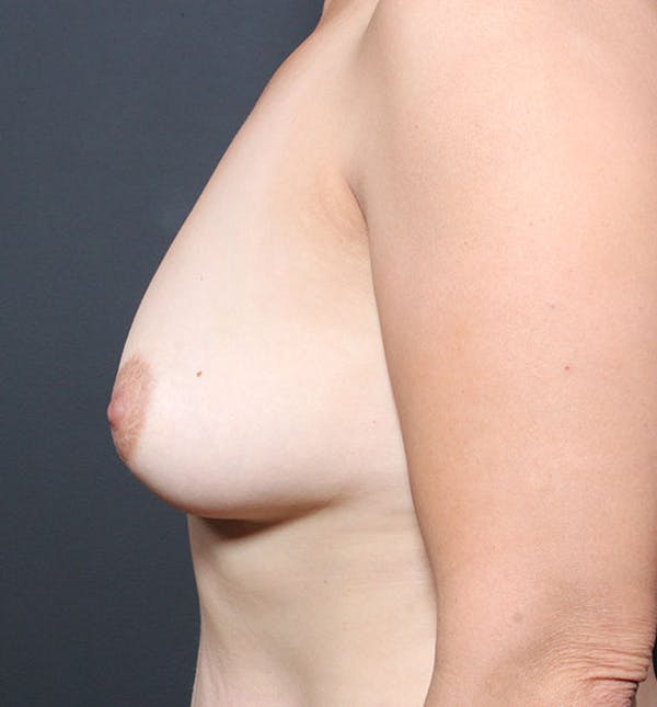 Breast Aug Fat Grafting Gallery - Patient 14089616 - Image 5