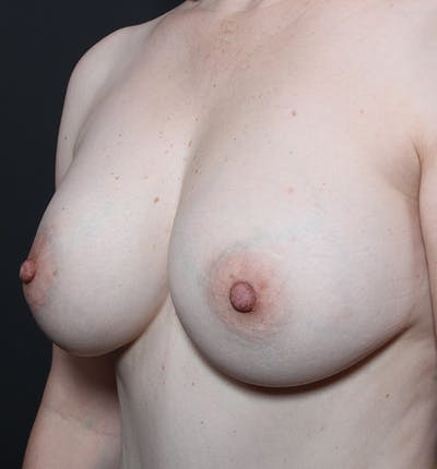 Breast Lift Mastopexy Gallery - Patient 14089617 - Image 1