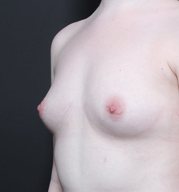 Breast Augmentation Gallery - Patient 14089618 - Image 1