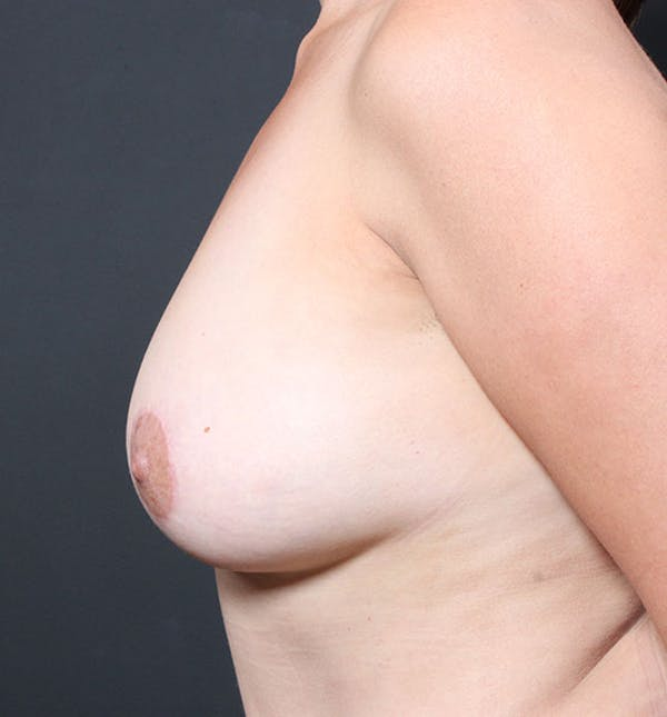 Breast Aug Fat Grafting Gallery - Patient 14089616 - Image 6