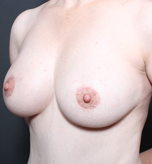Breast Lift Mastopexy Gallery - Patient 14089617 - Image 2