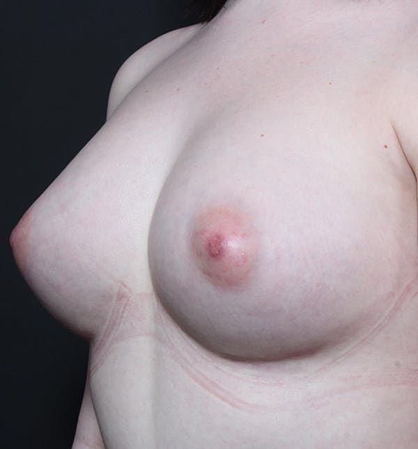 Breast Augmentation Gallery - Patient 14089618 - Image 2