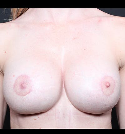 Breast Implant Revision Gallery - Patient 14089619 - Image 4