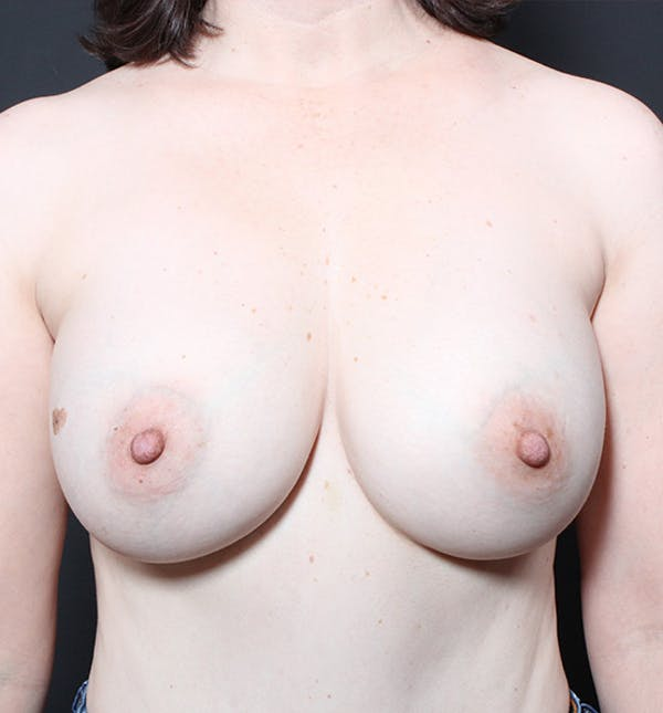Breast Lift Mastopexy Gallery - Patient 14089617 - Image 3