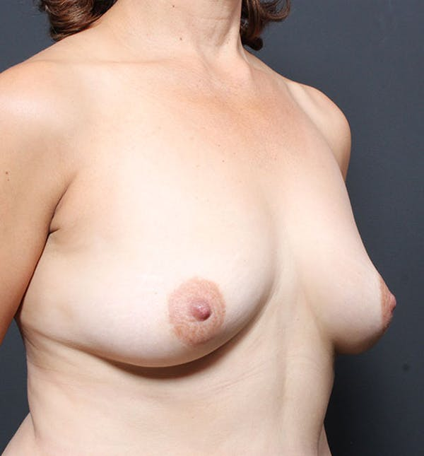 Breast Aug Fat Grafting Gallery - Patient 14089616 - Image 7