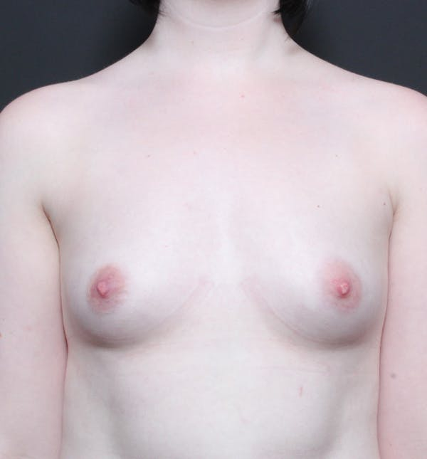Breast Augmentation Gallery - Patient 14089618 - Image 3