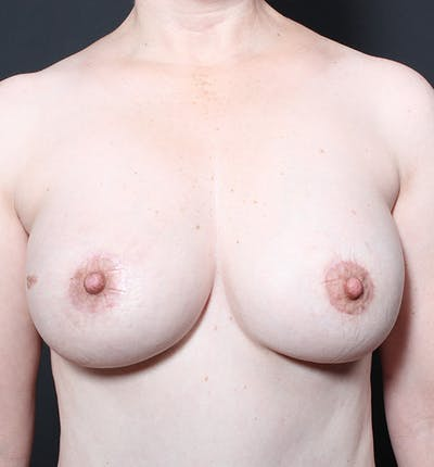 Breast Lift Mastopexy Gallery - Patient 14089617 - Image 4