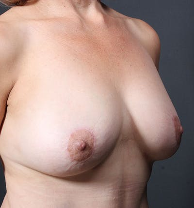 Breast Aug Fat Grafting Gallery - Patient 14089616 - Image 8