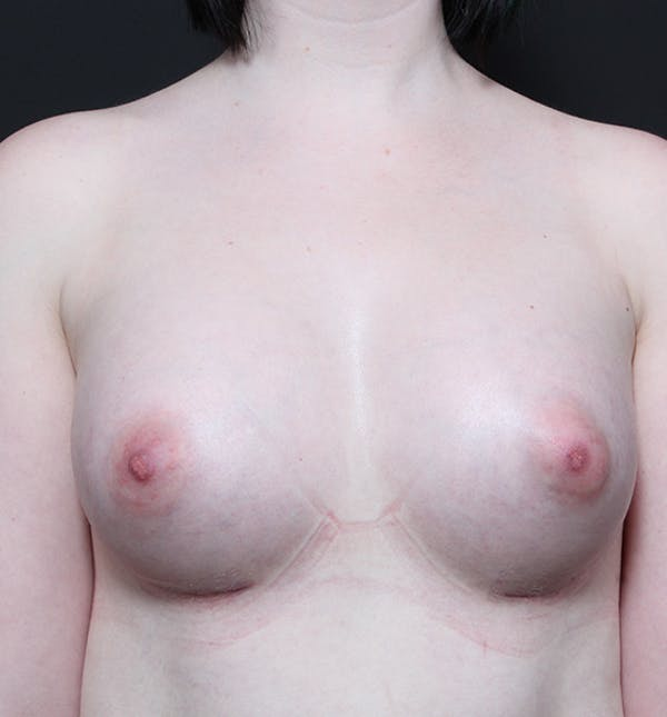 Breast Augmentation Gallery - Patient 14089618 - Image 4