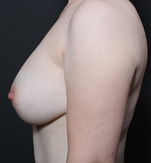 Breast Lift Mastopexy Gallery - Patient 14089617 - Image 5