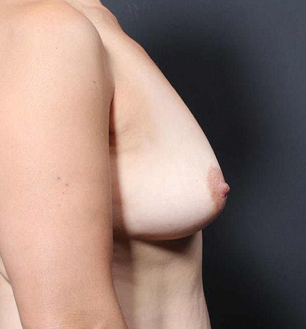 Breast Aug Fat Grafting Gallery - Patient 14089616 - Image 9