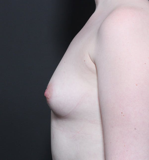 Breast Augmentation Gallery - Patient 14089618 - Image 5