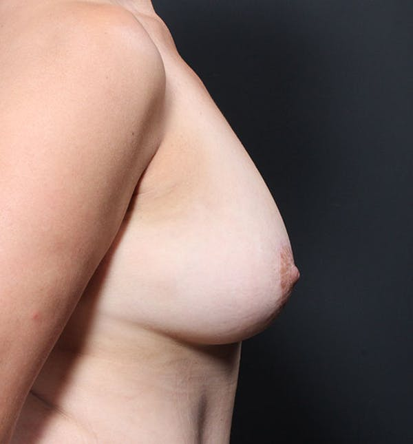 Breast Aug Fat Grafting Gallery - Patient 14089616 - Image 10