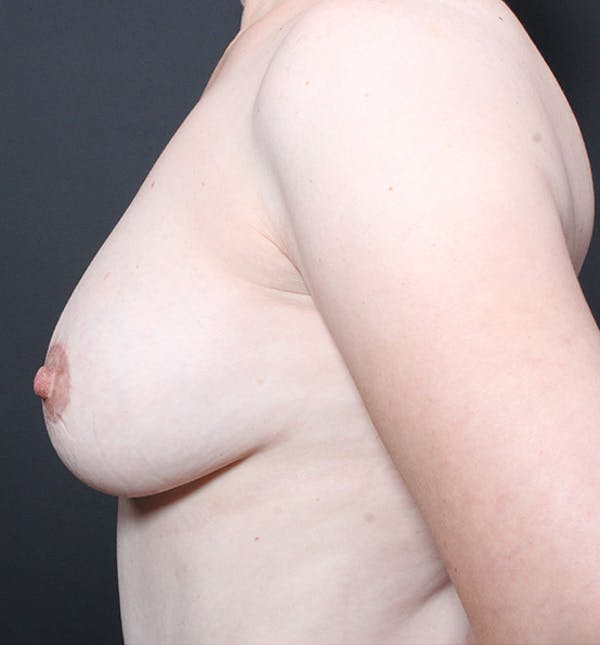 Breast Lift Mastopexy Gallery - Patient 14089617 - Image 6
