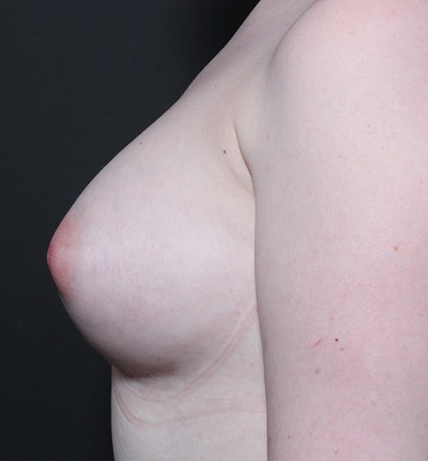 Breast Augmentation Gallery - Patient 14089618 - Image 6
