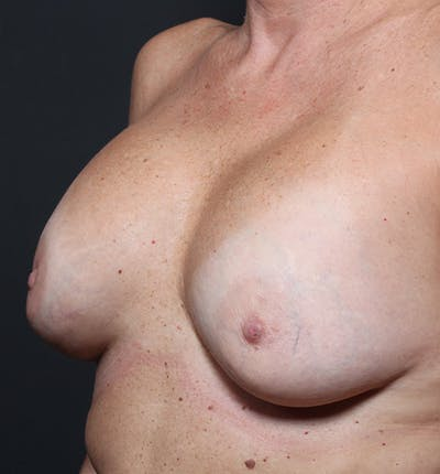 Breast Lift Mastopexy Gallery - Patient 14089625 - Image 1