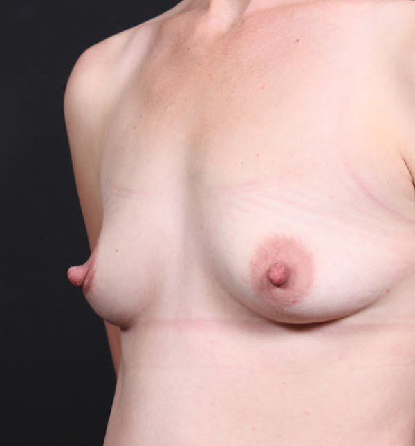 Breast Augmentation Gallery - Patient 14089622 - Image 1