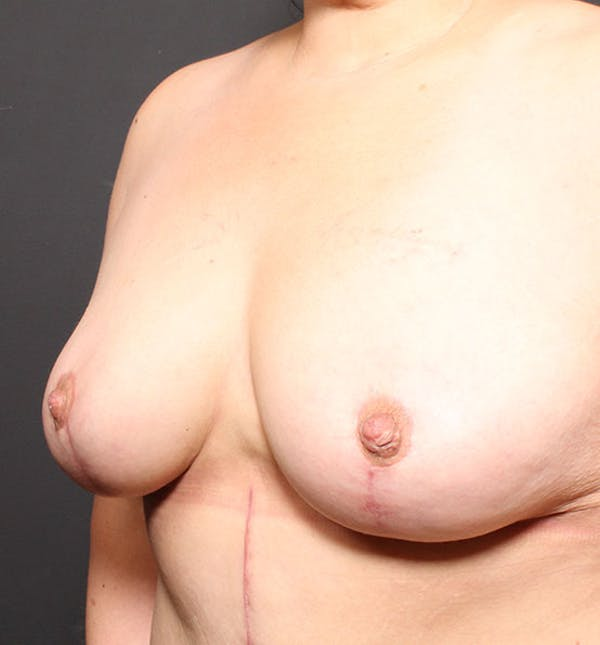 Breast Aug Fat Grafting Gallery - Patient 14089623 - Image 2