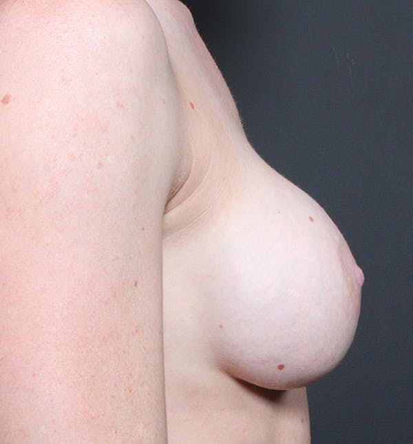 Breast Implant Revision Gallery - Patient 14089619 - Image 9